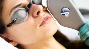 IPL Laser Acne Treatment